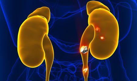 Piedras en el riñón: ¿cómo evitar que su formación?